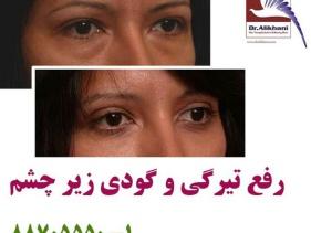رفع تیرگی دور چشم و روشن سازی پوست با مزوتراپی