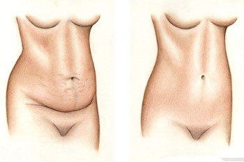 skin-belly-surgery