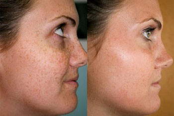 Skin-discoloration